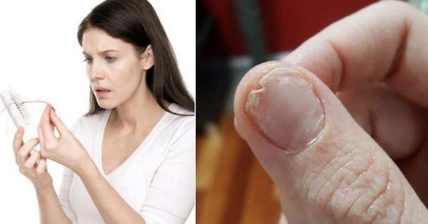Mellékvese betegség jelei